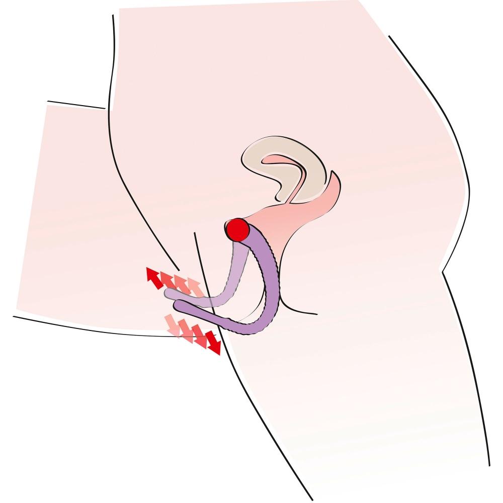 Ecarteur de Vagin et Stimulateur de Point G Intimate Spreader